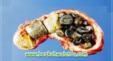 Obat Penghancur Batu Empedu Herbal Ampuh Tanpa Operasi