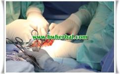 Kisaran Biaya Operasi Hernia (Turun Berok) Di Beberapa Rumah Sakit