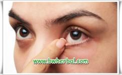Ini 4 Kondisi Yang Menyebabkan Mata Belekan Terus Menerus!