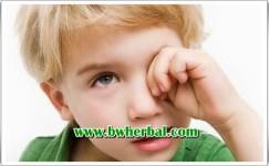 4 Gejala Kanker Mata Pada Anak Yang Harus Diwaspadai Sejak Dini!