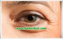 Cara Mencegah Glaukoma Yang Mudah Dilakukan Sejak Dini