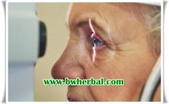 Gejala Glaukoma Dan Penyebabnya Yang Harus Di Waspadai Sejak Dini