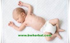 Cara Mengatasi Ruam Popok Pada Bayi Yang Tepat Di Rumah