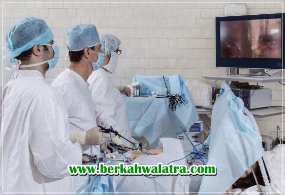 biaya operasi usus buntu