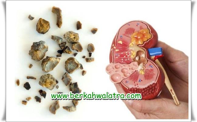 Obat Batu Ginjal Alami Tanpa Operasi √ Herbal Terbaik Terbukti Ampuh