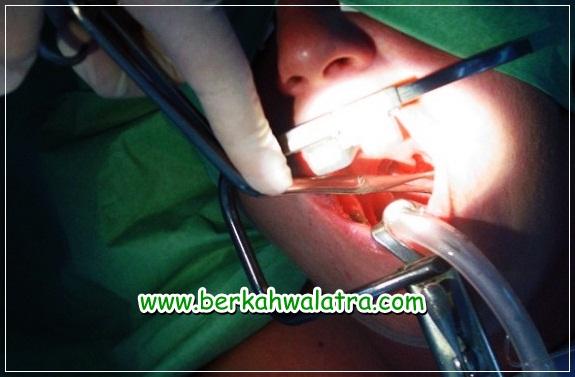 biaya operasi amandel