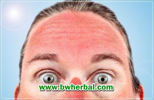 cara mengatasi kulit terbakar sinar matahari