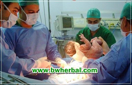 kisaran biaya operasi caesar