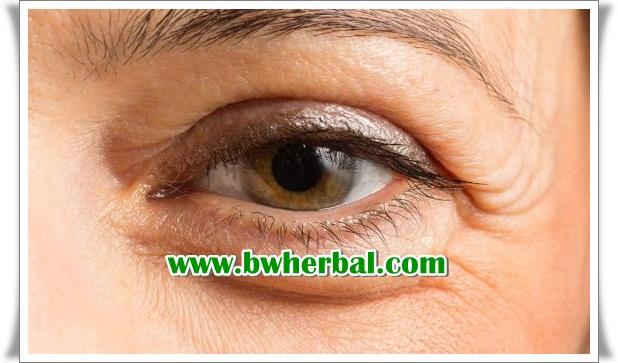 cara mencegah glaukoma