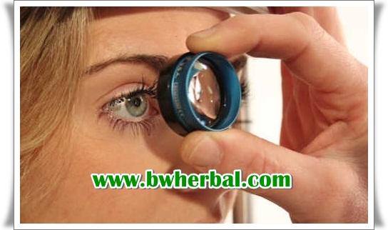 pengobatan glaukoma