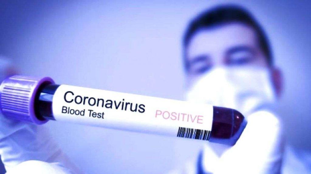 Kenali Tanda dan Gejala Virus Corona Lebih Dini Sebelum Terlambat
