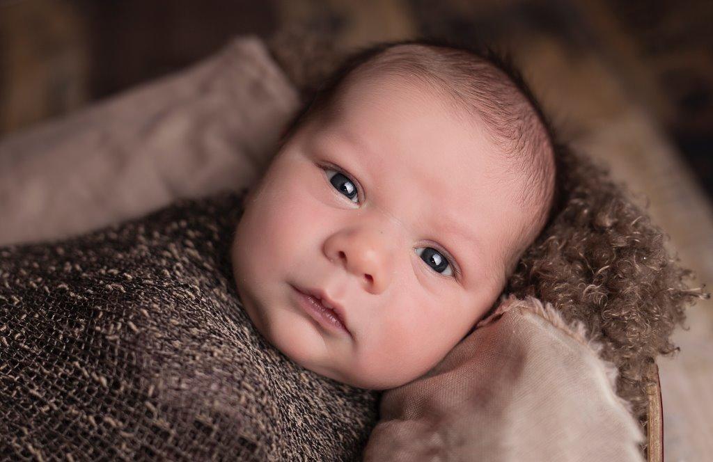 gejala katarak pada bayi