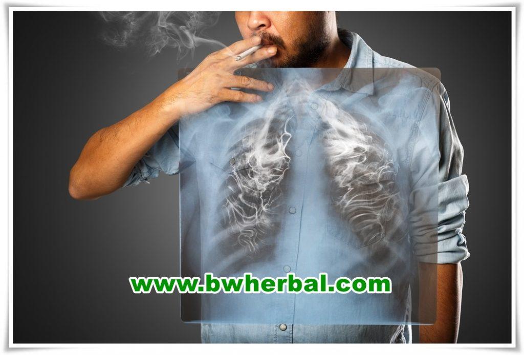 cara membersihkan paru-paru perokok